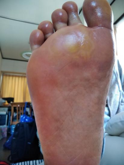 痛い 水ぶくれ ない 歩け 裏 足 の